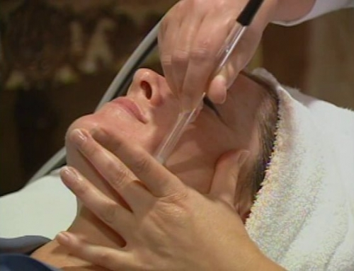 Microdermabrasion Can Help Your Skin Look Younger